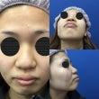 鼻中隔延長による鼻の…