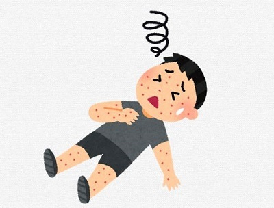 アトピー患者 診断 食事指導