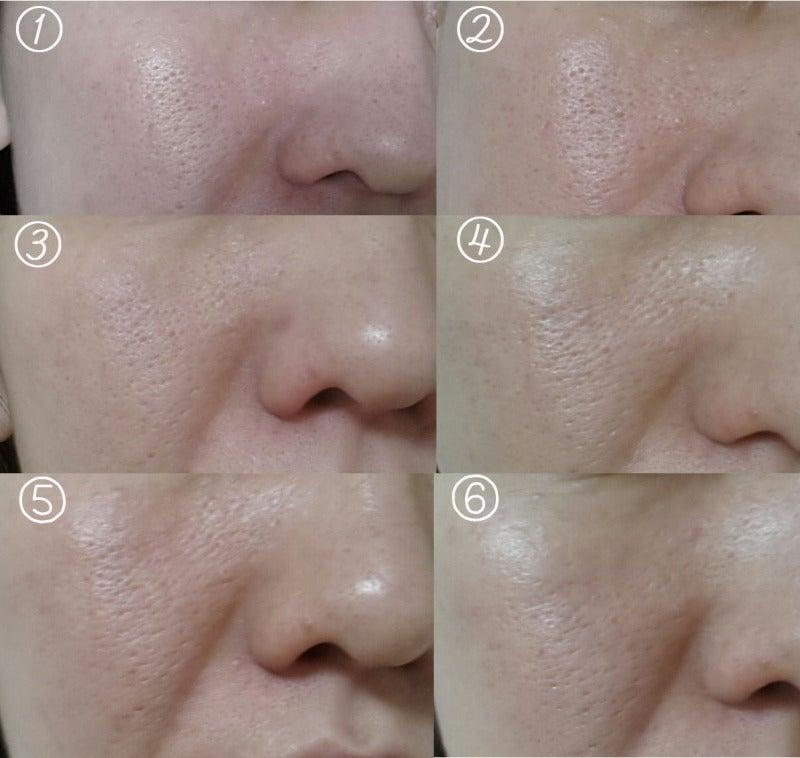 ヒフミド・アヤナス・モイスチャーライン(エトヴォス)バイタライジングライン(エトヴォス)・セルピュア・サエルの使用前使用後毛穴比較写真