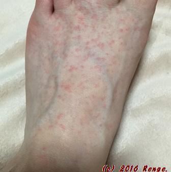 に 斑点 足 かゆい 赤い