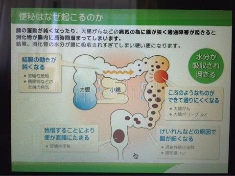 腸閉塞 なり かけ の 症状 腸閉塞の前兆や症状・治療法!原因はストレスや大腸がんも?