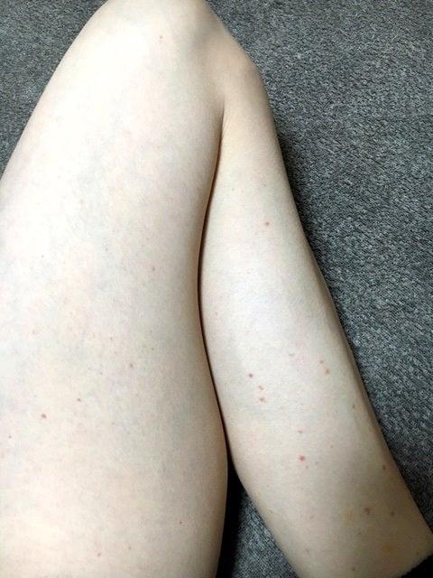 画像 大人 足 紫斑 病 血管性紫斑病(アレルギー性紫斑病)