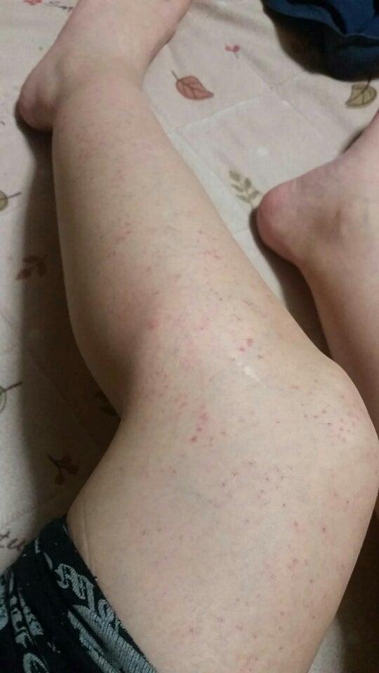 麻疹 ふくらはぎ 蕁