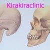 下顎のボリュームが大切 ☆ リフトアップは骨からの画像
