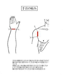 腱鞘炎 湿布 貼り 方
