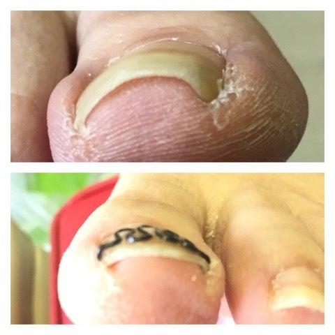 巻き爪矯正はこんな感じです。の記事より