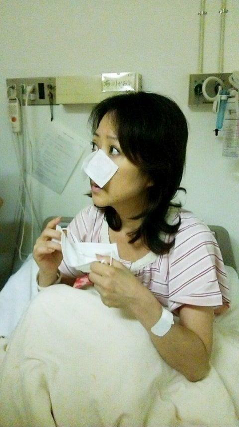 副 鼻腔 炎 手術 ブログ