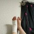 左足首負傷