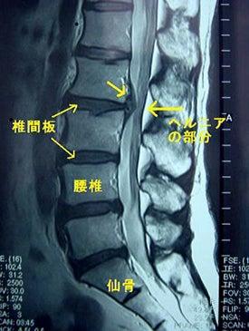 レントゲンで『骨には異常が見られません』と言われた患者さんの記事より