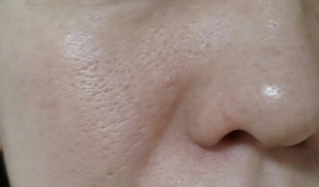 ディセンシアサエル現品使用45日目(復活22日目)の右頬毛穴写真