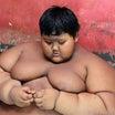 完全に別人!世界一の肥満児 110キロの減量に成功