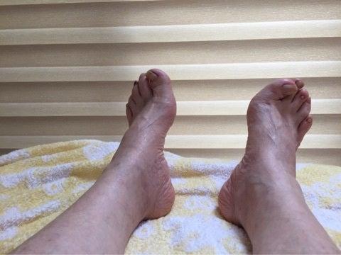 脚が太くなりずらく歩くの記事より
