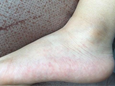 足に発疹ができたから手足口病と確信。