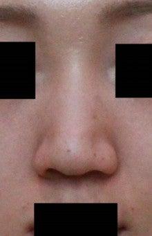切ら ない 縮小 小鼻