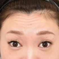 額ボトックス★スタッフ体験レポート★の記事に添付されている画像