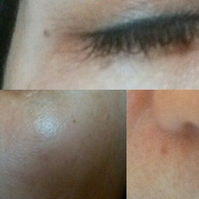 顔のシミを撲滅せよ!(東大式トレチノイン治療とプラセンタ療法 夢のコラボ編)の記事に添付されている画像