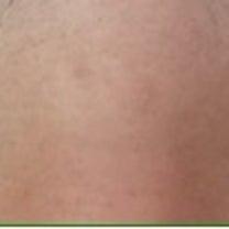 ♡1日目 埋没法抜糸から5ヶ月後再手術♡の記事に添付されている画像