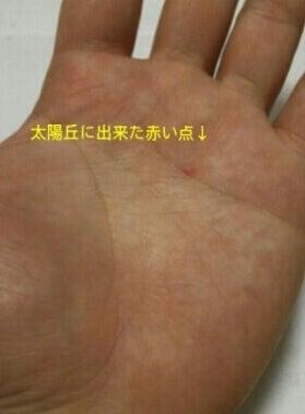 赤い 点 手の甲