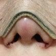 鼻翼縮小手術ーーー