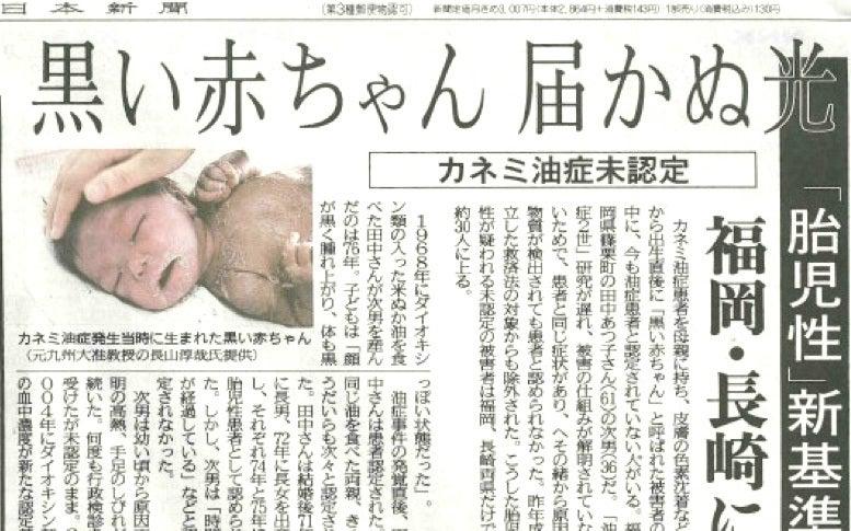 食品公害病と活性酸素による「酸化ストレス」 | 大阪 茨木市のエステ ...