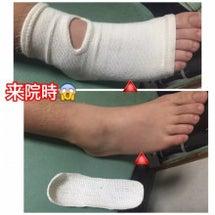 小指中足骨骨折で歩け…