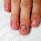 深爪矯正のお客様 爪の長さだし/青山ネイルサロンアリュームの記事より
