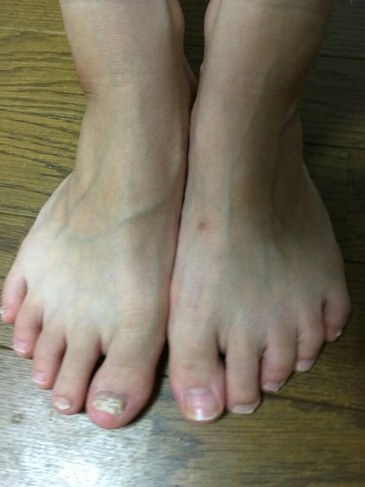 そして現在の足です❗