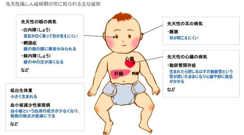 「麻疹」「風疹」が流行中:ワクチン接種は必要か? | Dr.Hisacchi ...