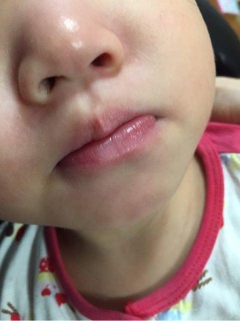 口 湿疹 子供 写真 周り の