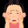 乾燥対策は肌荒れ対策