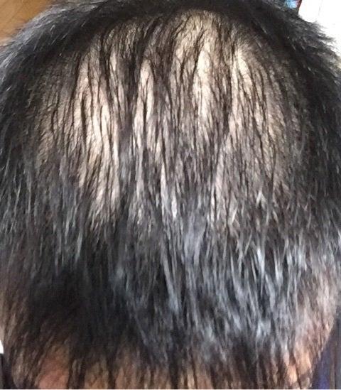 脱毛 フィナステリド 初期