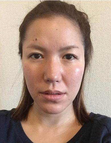 山田・ビフォー・リョウ様IMG_8915