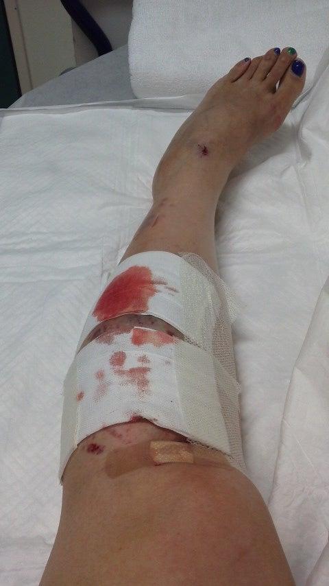 ねん挫と打撲と裂傷と擦過傷 | ...