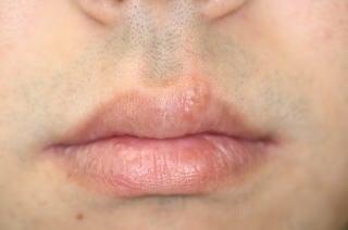 ヘルペス 唇 じゃ ない 水泡