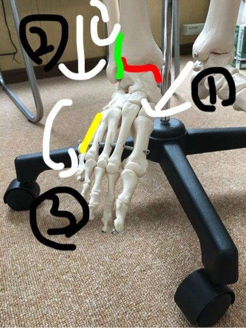 足の捻挫の記事より