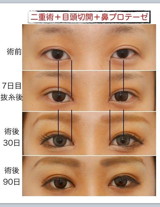 二重・目頭切開・鼻プロテーゼの症例写真