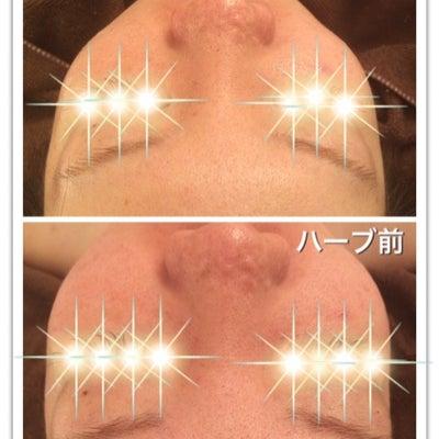 もはや生理前の方がお肌が綺麗!?の記事に添付されている画像