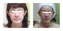 半顔体験30代後半