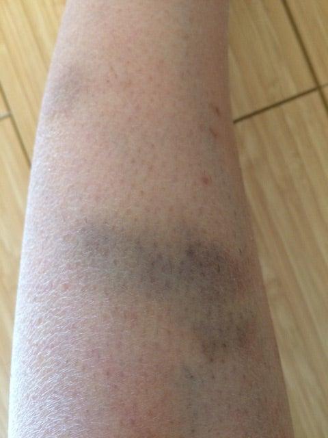 特発性血小板減少性の症状で足に大きな痣