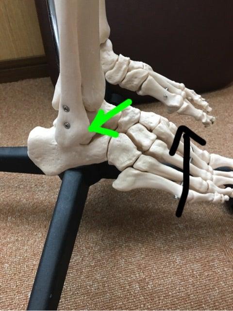 足首の痛みの記事より