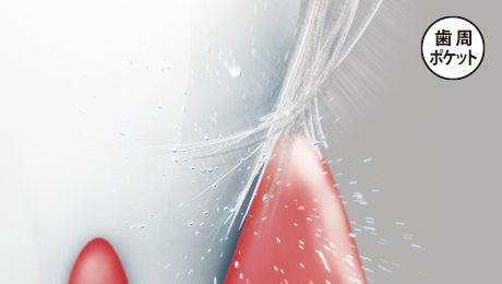 「歯周ポケット 歯ブラシ CM」の画像検索結果