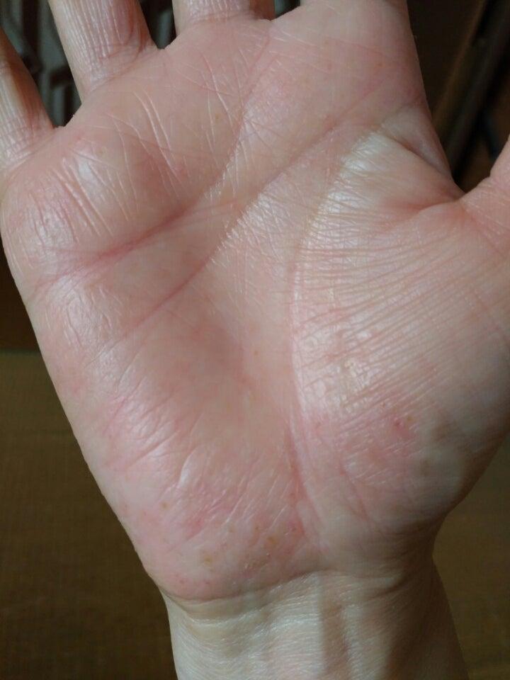 掌 蹠 膿疱 症 医師解説:掌蹠膿疱症とビオチン療法、本当のところ