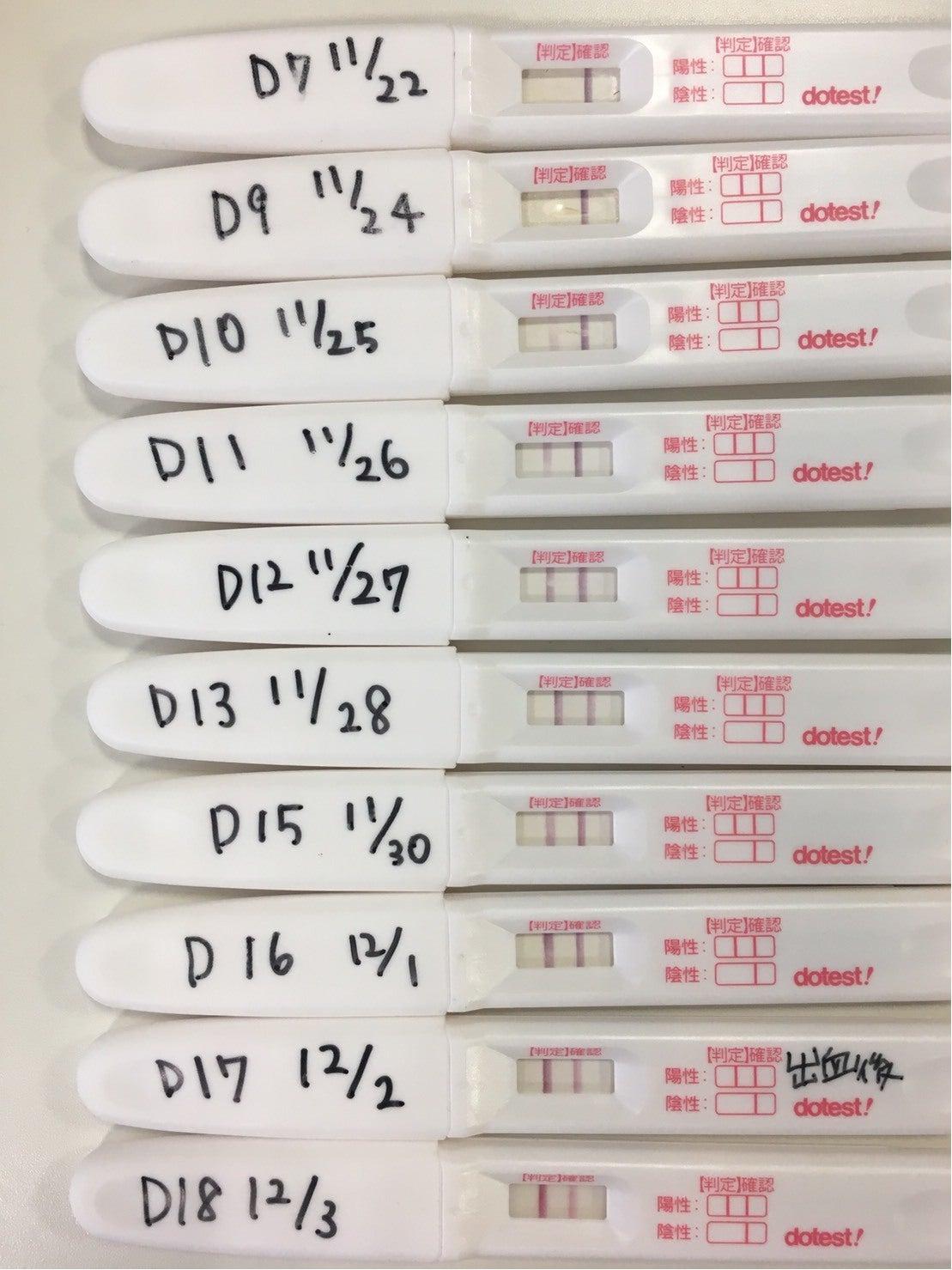 妊娠 検査 薬 フライング いつ