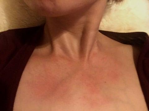 紫外線アレルギー