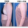 二の腕脂肪吸引術1ヶ…