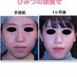 顔の脂肪吸引 1ヶ月…