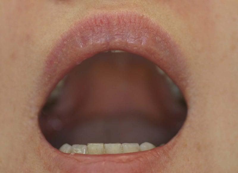 白い フォアダイス 唇 ブツブツ