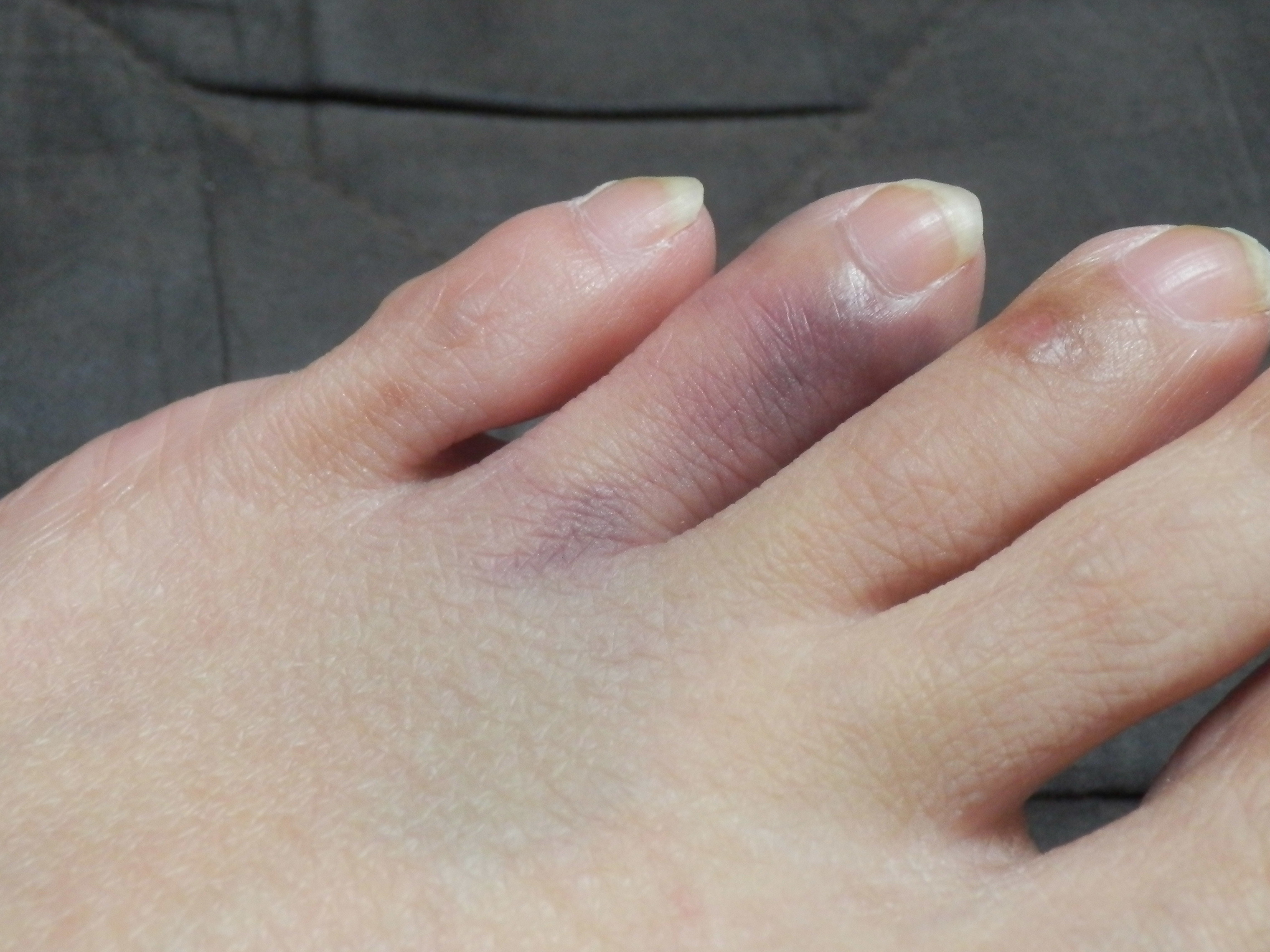 た ぶつけ 足 指 内出血 の