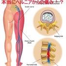 坐骨神経痛の本当の原因は?   金沢市  腰痛  整体院  樹の記事より
