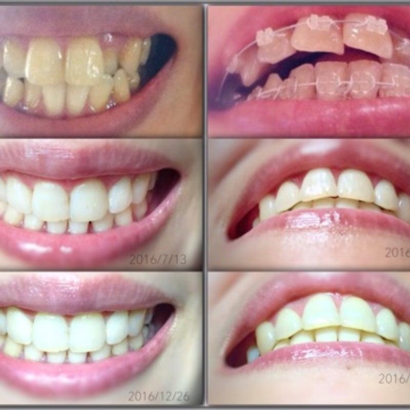 矯正 ブログ 列 歯